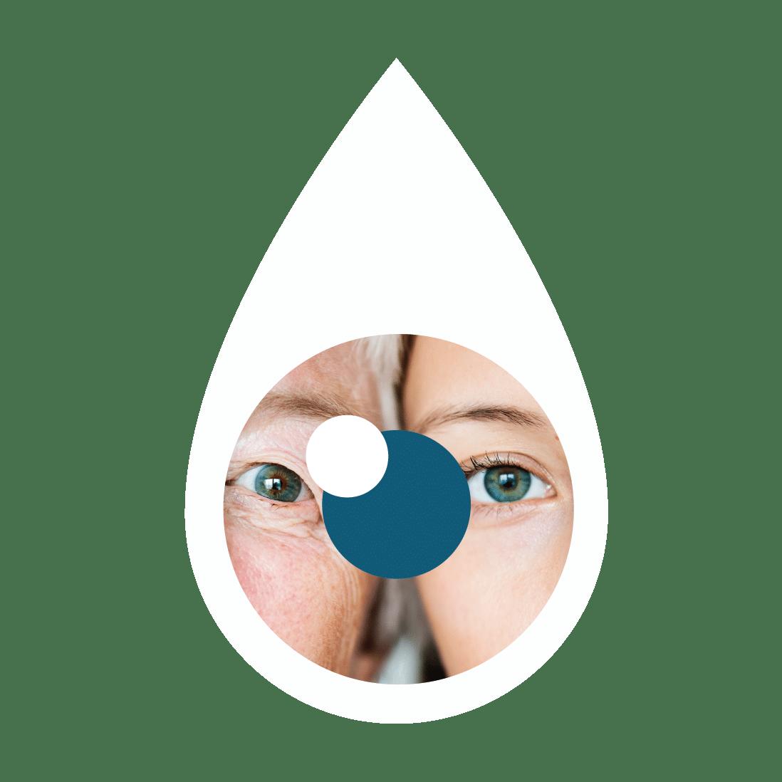 hylo gel cauze și simptome ale ochiului uscat
